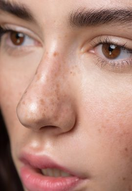 11 Things that Freckled People must Endure