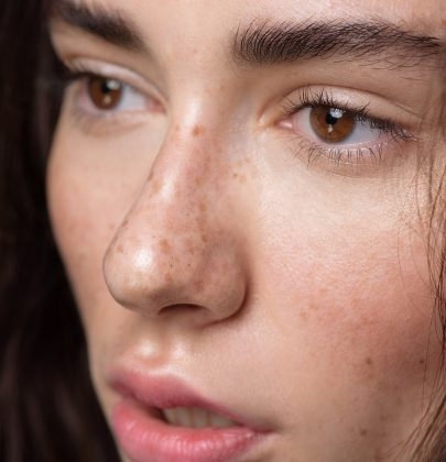 11 Things that Freckled People must Endure